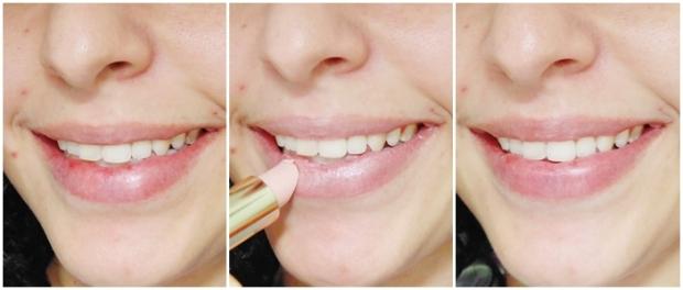 Antes e depois dos lábios
